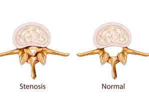 Stenoza canalului spinal lombar
