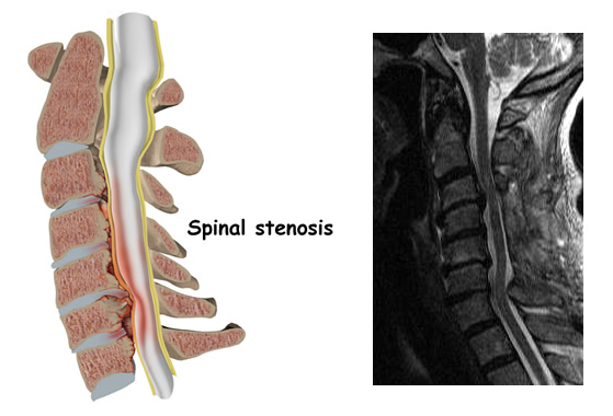 cervical_stenosis