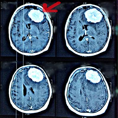 Tumora cerebrala