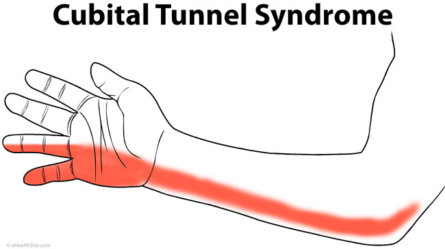 cubital-tunel-syndrome-arm-pain