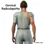 radiculopatia cervicala