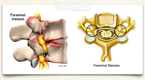 conditionsimg-foraminalstenosis
