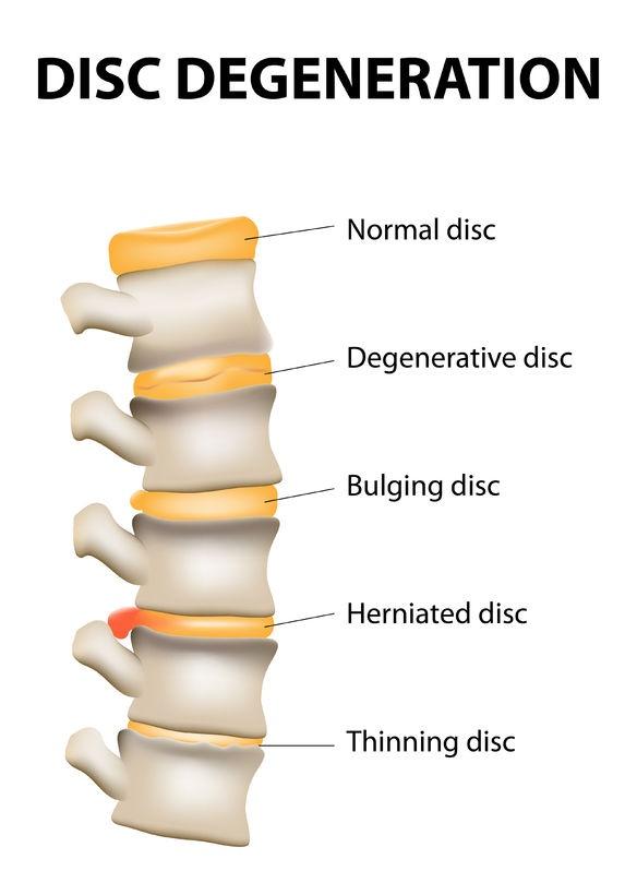 disc-degenerat