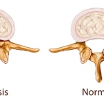 stenoza canal rahidian
