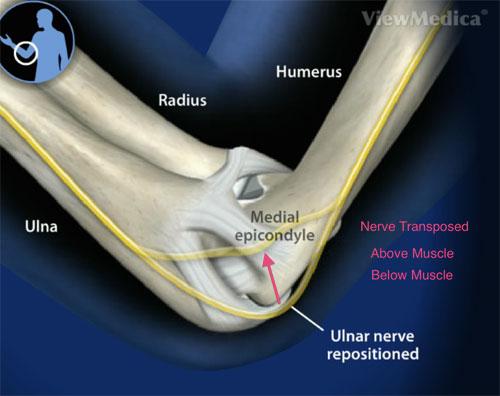 ulnar-surgery